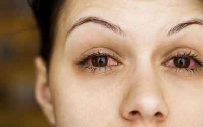 5 Causes of Dry Eyes
